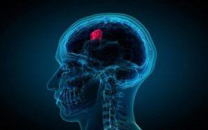 Lithium Can Repeal Radiation Harm Following Brain Tumor Treatment
